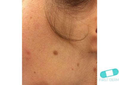 Mole (Congenital nevus) (10) cheek face [ICD-10 D22.9]