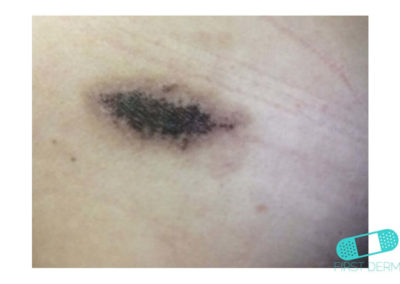 Mole (Congenital nevus) (12) skin [ICD-10 D22.9]