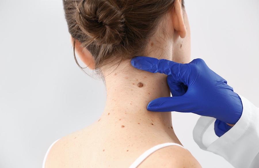 mole-remover-skin-tag