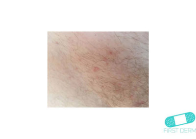 Molluscum contagiosum (Water warts) (03) skin [ICD-10 B08]