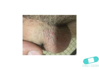 Molluscum contagiosum (Water warts) (05) testicles [ICD-10 B08]