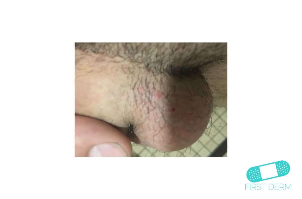 Molluscum contagiosum (Water warts) (05) testicles [ICD-10 B08]
