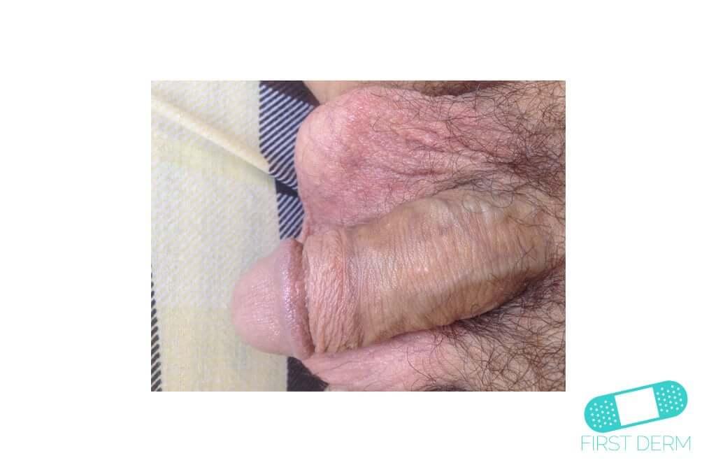 Molluscum contagiosum (Water warts) (10) penis [ICD-10 B08]