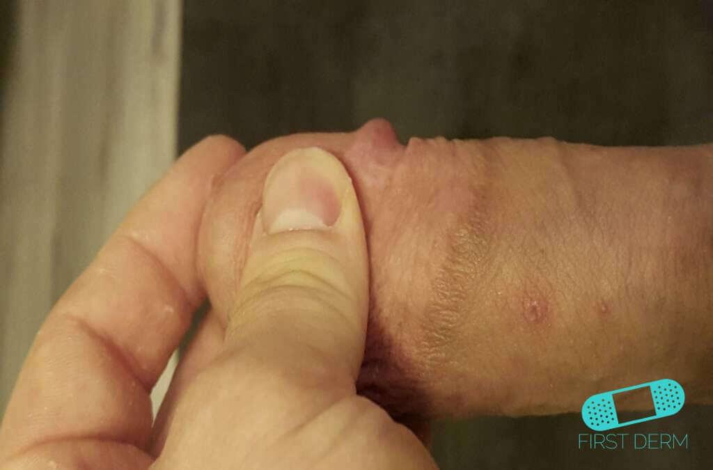 Molluscum contagiosum (Water warts) (21) penis [ICD-10 B08]