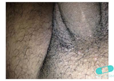 Molusco Contagioso (Verrugas de Agua) cojones (11) pene [ICD-10 B08]