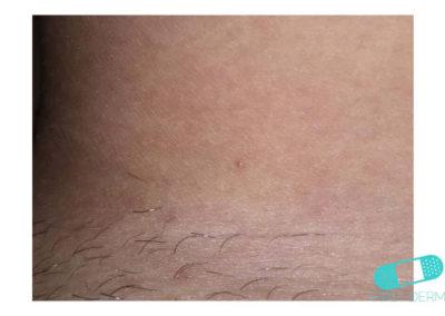 Molusco Contagioso (Verrugas de Agua) estomacho (15) piel [ICD-10 B08]