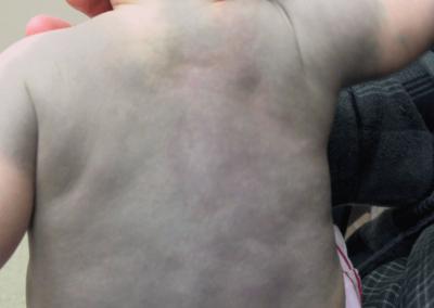 Mongolfläckar (28) rygg [ICD-10 Q82.8]