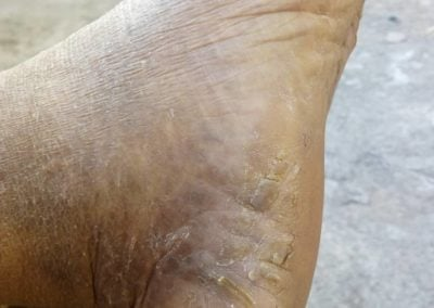 Mycosis fungoides foot C84.0