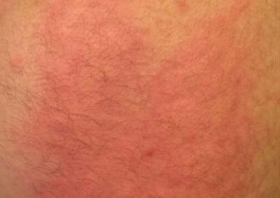 Nässelfeber (urtikaria) (17) hud [ICD-10 L50]