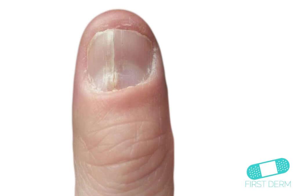 spricka i nageln längsgående