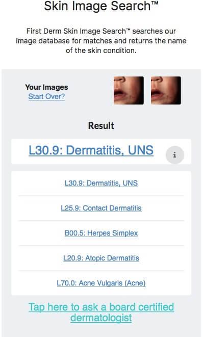 Netdoctor Atopic Dermatitis cheek child AI