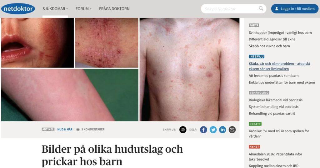 Netdoctor Netdoktor Sweden Dermatology AI