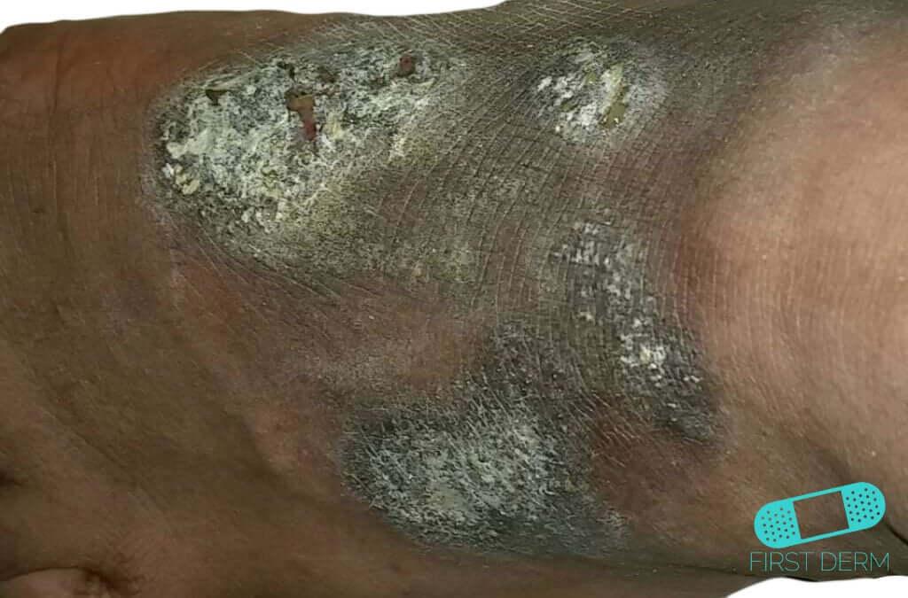 Hudcancer röd fläck