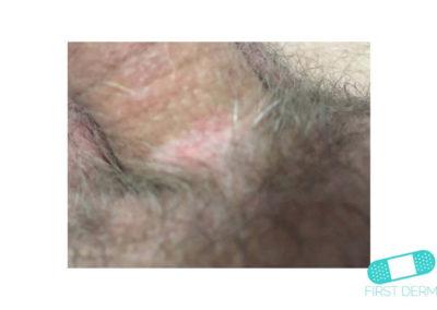 Neurodermatit (19) penis [ICD-10 L20.81]