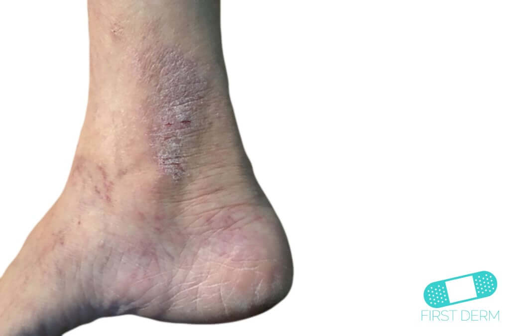 Neurodermatitis (01) foot ankle [ICD-10 L20.81]