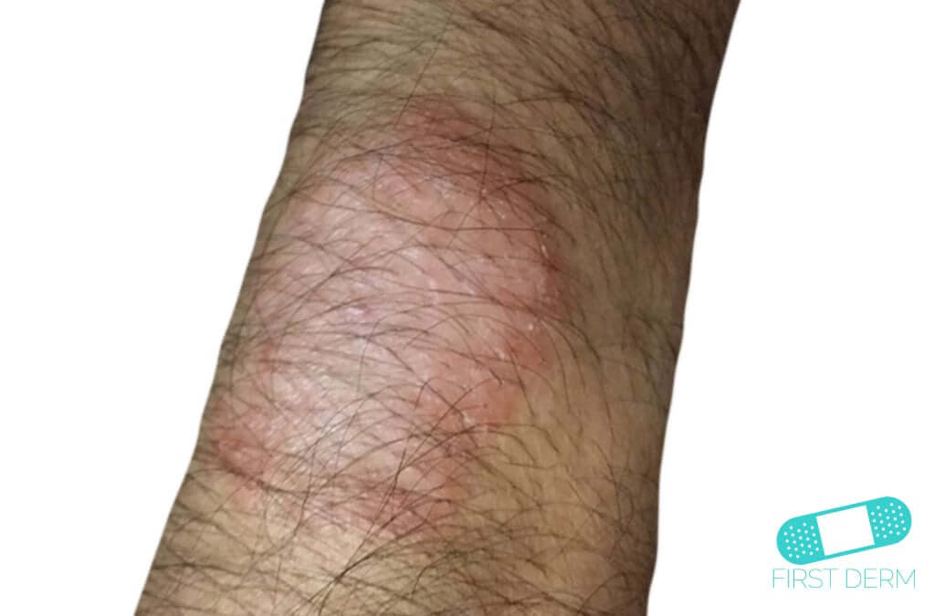 Neurodermatitis (06) arm [ICD-10 L20.81]