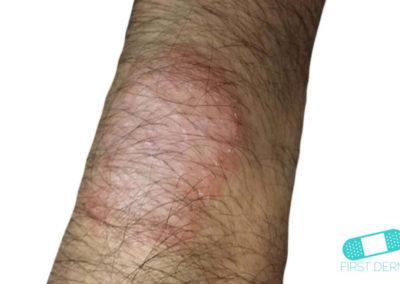Neurodermatitis (06) brazo [ICD-10 L20.81]