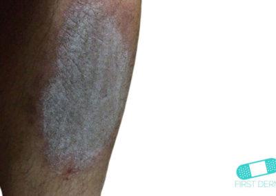 Neurodermatitis (07) piel [ICD-10 L20.81]