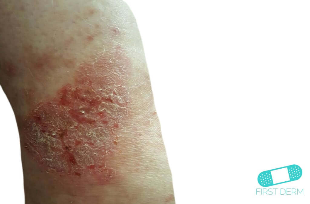 Neurodermatitis (10) leg [ICD-10 L20.81]