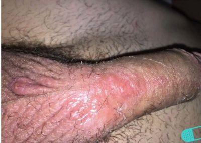 Neurodermatitis (11) penis scrotum [ICD-10 L20.81]
