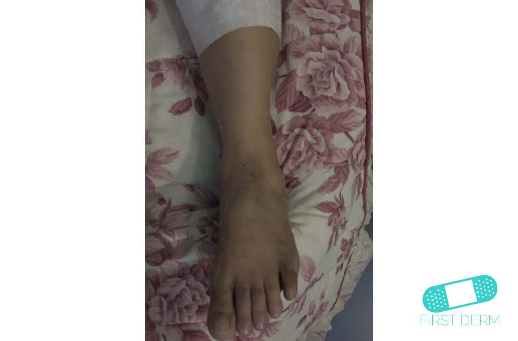 Neurodermatitis (12) foot [ICD-10 L20.81]