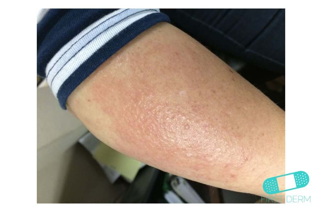 Neurodermatitis (13) arm [ICD-10 L20.81]