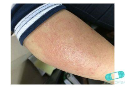 Neurodermatitis (13) brazo [ICD-10 L20.81]