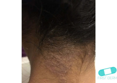Neurodermatitis (18) nuca [ICD-10 L20.81]