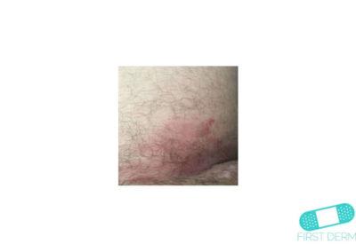 Nummulärt eksem (mynteksem) (06) hud [ICD-10 L30.0]