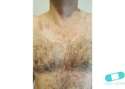 Nummulärt eksem (mynteksem) (11) bröst [ICD-10 L30.0]