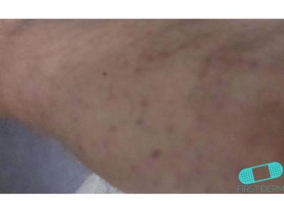 Nummulärt eksem (mynteksem) (16) hud [ICD-10 L30.0]