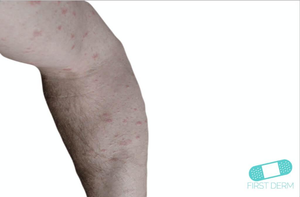 Nummular Eczema (Discoid Dermatitis) (01) arm [ICD-10 L30.0]