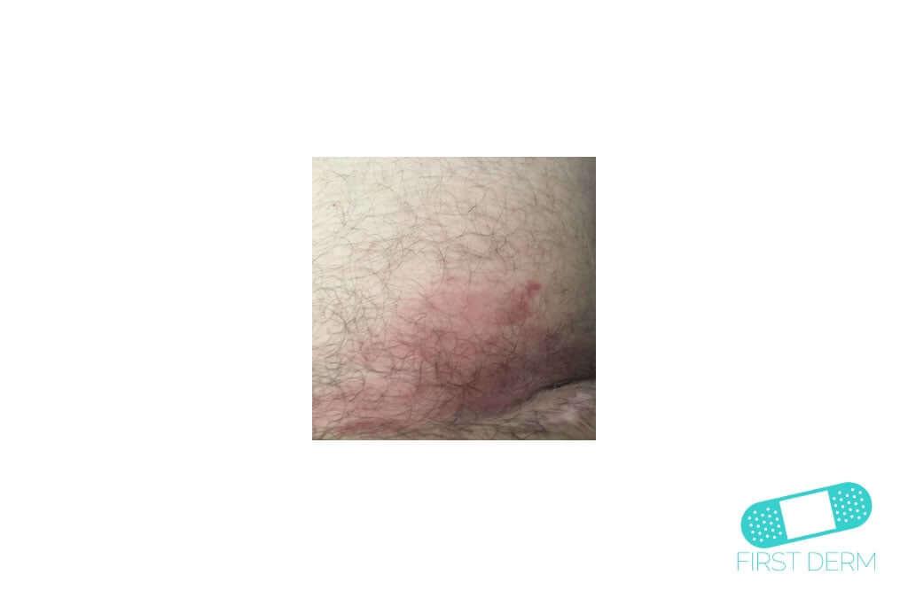 Nummular Eczema (Discoid Dermatitis) (06) skin [ICD-10 L30.0]