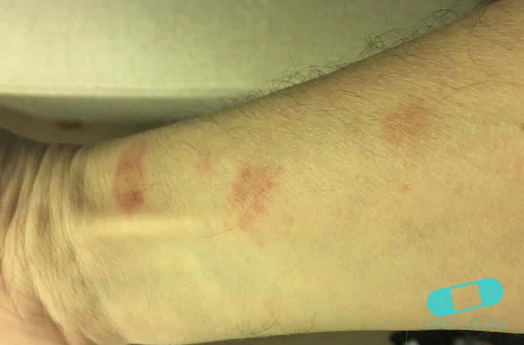 Nummular Eczema (Discoid Dermatitis) (07) arm [ICD-10 L30.0]