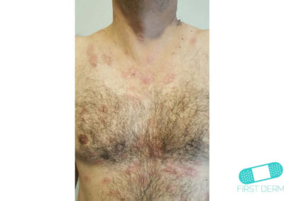 Nummular Eczema (Discoid Dermatitis) (11) chest [ICD-10 L30.0]