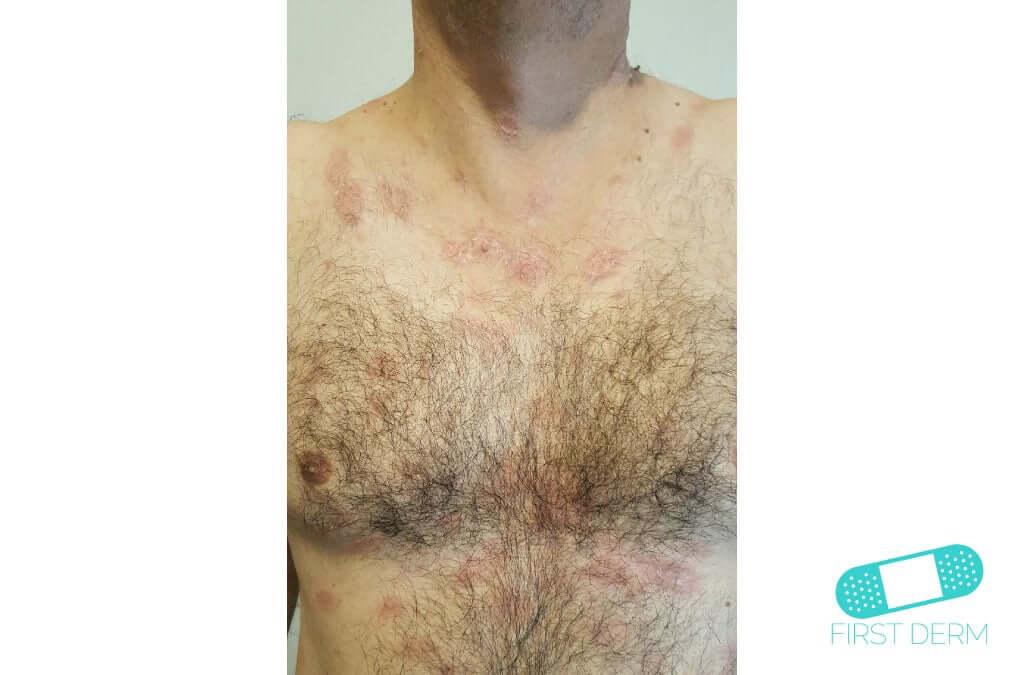 Nummular Eczema (Discoid Dermatitis) (11) chest [ICD-10 L30.0]