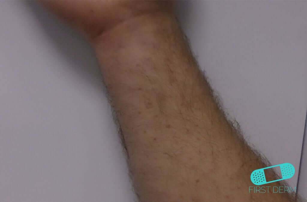 Nummular Eczema (Discoid Dermatitis) (17) arm [ICD-10 L30.0]