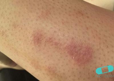Nummular Eczema (Discoid Dermatitis) (18) leg [ICD-10 L30.0]