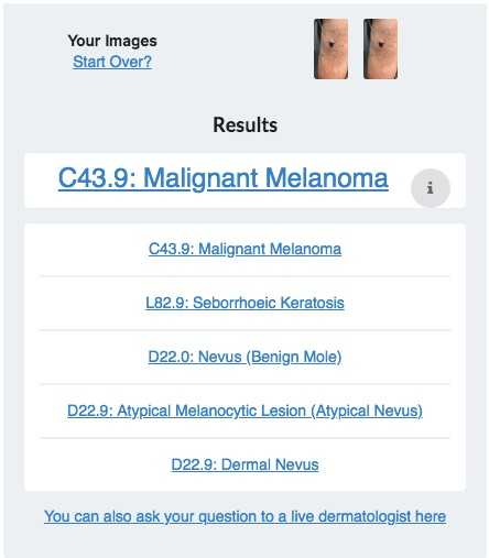 Online dermatology is cost effective and can save lives