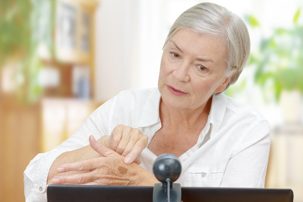 online dermatologist senior woman computer webcam mole
