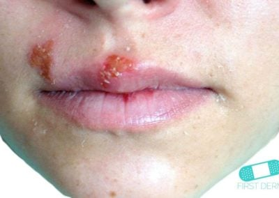 Oral Herpes (Cold sores) (01) mouth [ICD-10 B00.5]
