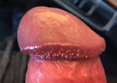 Pearly Penile Papules - Hirsuties coronae glandis - Penis