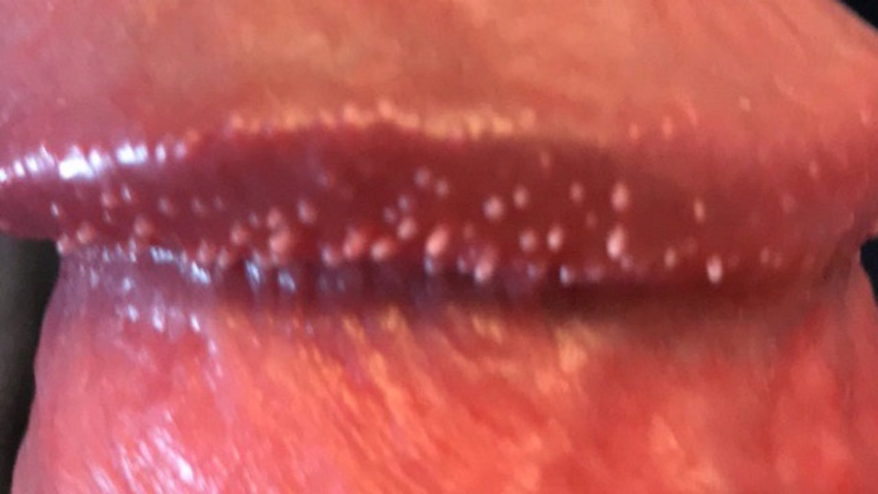 Papules pink pearly Pearly Penile