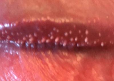 Penila Papler - Hirsuties coronae glandis Penis ridge