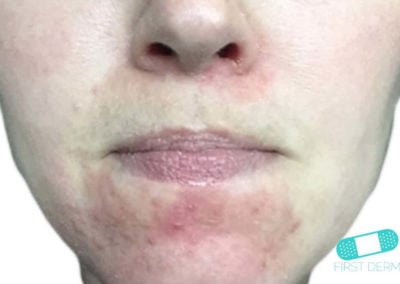 Perioral Dermatitis (02) chin [ICD-10 L71.0]
