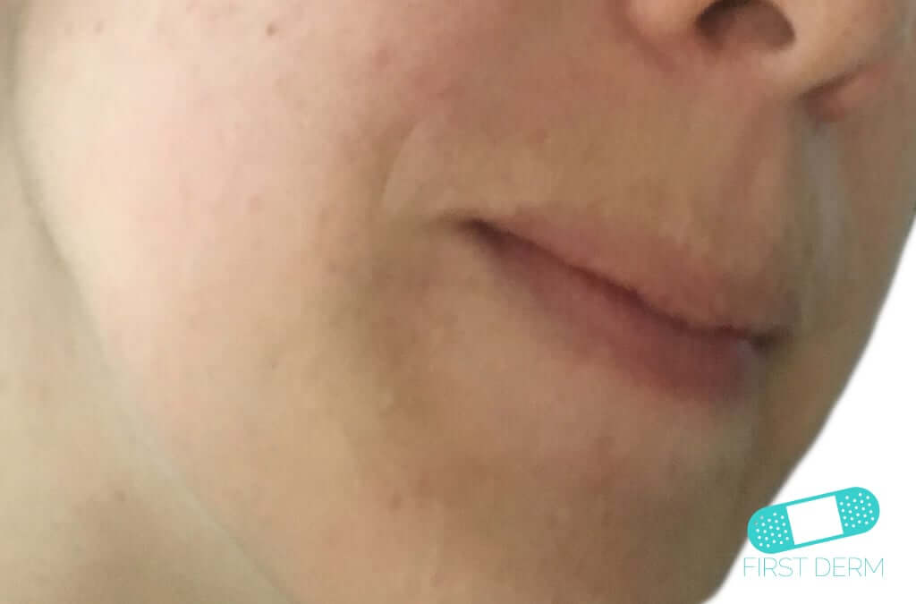 Perioral Dermatitis (08) face [ICD-10 L71.0]