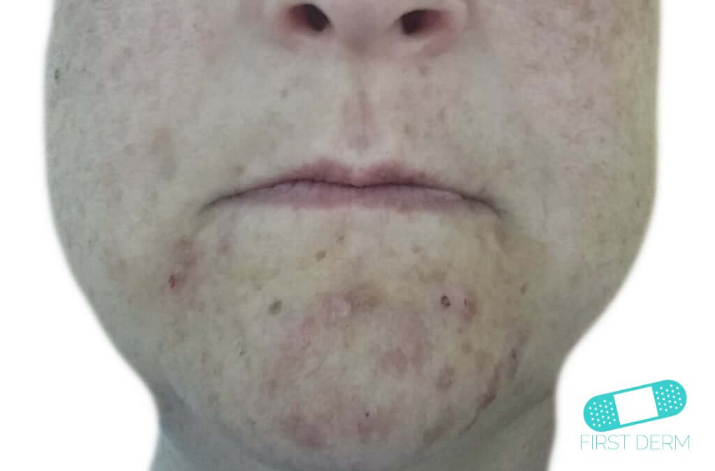 Perioral Dermatitis (11) chin [ICD-10 L71.0]