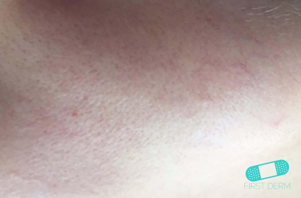 Perioral Dermatitis (15) skin [ICD-10 L71.0]
