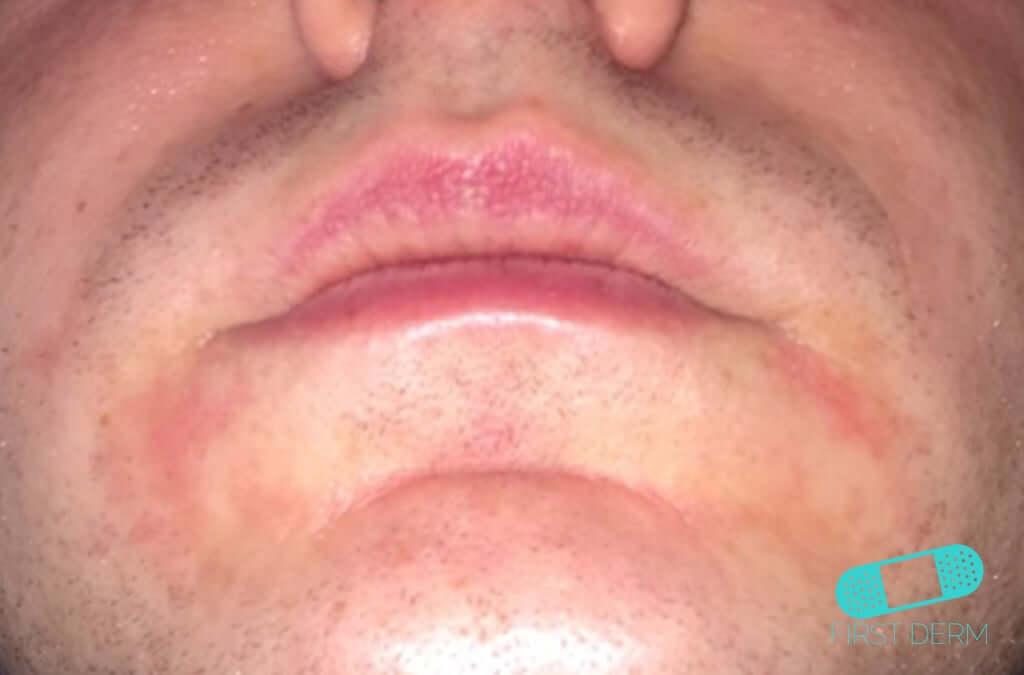 Mild Perioral Dermatitis Lips