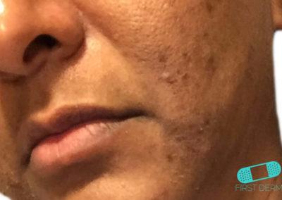 Perioral Dermatitis (19) cheek [ICD-10 L71.0]